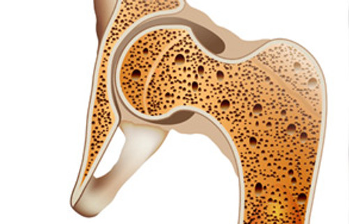 Mediterranean Diet Good for Osteoporosis