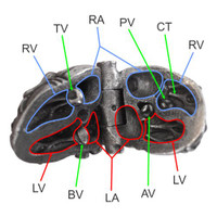 Right Atrium, Left Atrium, Right Ventricle, Left Ventricle, Tricuspid Valve, Bicuspid (mitral) Valve, Pulmonary Valve, Aortic Valve, Chordae Tendonae
