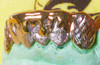 ChiGrillz Dripping Wet Design Grillz Style-YS714 6 Cap Goldteeth Drip Diamond Cut k9 and Stone Finish under the drip design