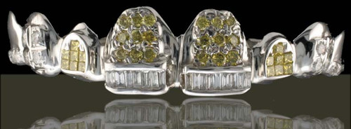 ChiGrillz Diamond Grillz Style-0505 8 cap white gold iced out diamond grillz baguettes and princess cuts with 2-7 piece canary princess cut invisible set diamonds,2 small baguette bars, 18-2pt canary diamonds and 14-2 pt diamonds.
