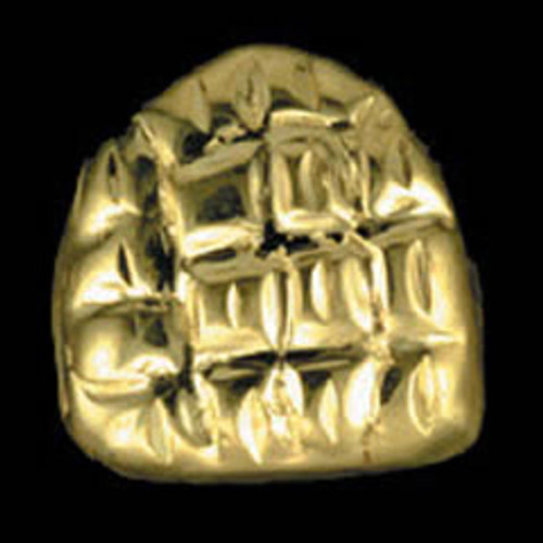 ChiGrillz Single Nugget Design Goldteeth Grillz Style-0076 One Gold Tooth Grills Cap With Gold Nugget Design  ChiGrillz Single Nugget Design Goldteeth Grillz