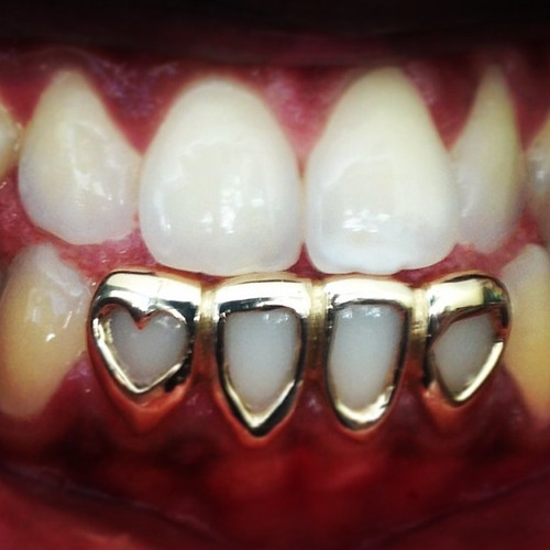 CHIGRILLZ Heart Shaped Grillz STYLE-Y0503 4 Gold Cap Open face frame with Heart shape cut out