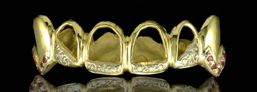 Chigrillz Diamond grillz Style-0283 6 goldteeth caps w/ fang ext 10 small rubies and 16 white diamond grillz