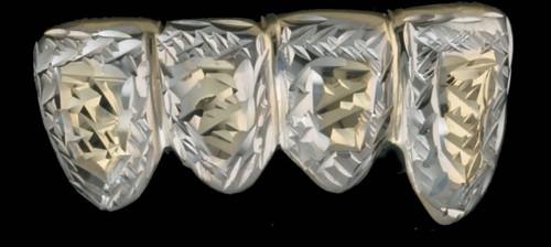 Chigrillz Diamond Cut Grillz Style-0429 4 Gold Caps diamond cut two tone white and yellow gold design grillz