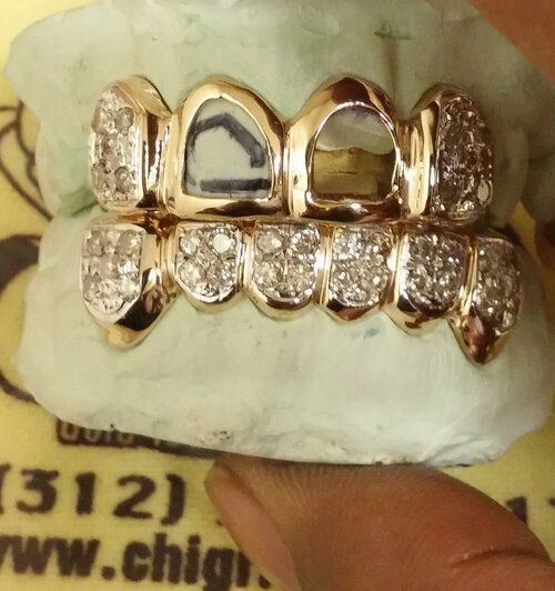 ChiGrillz.com Style ys704 Top and Bottom 4 Cap Open Face Gold Grillz with 18 .07ct diamonds on top and 6 cap grillz with 28 .07ct diamonds on the bottom set.