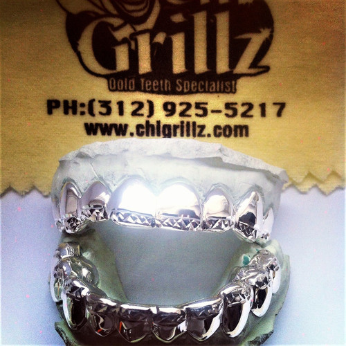 ChiGrillz Style Style-ys1010 10 Teeth top grillz and 10 Teeth bottom grillz 20 Cap gold teeth top and bottom grillz sets