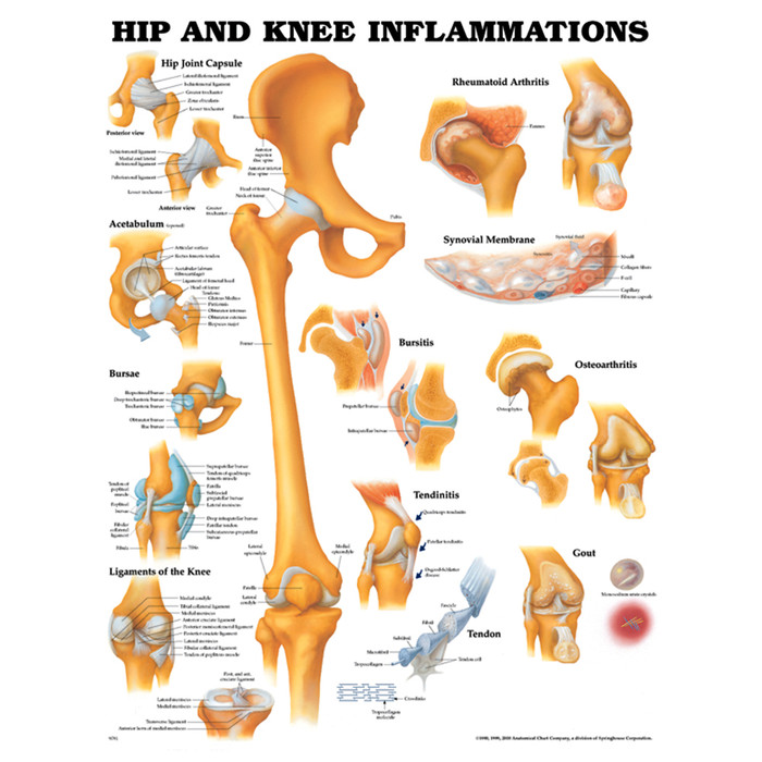 """HIP AND KNEE INFLAMMATIONS CHART 20"""" W X 26"""" H, LAMINATED"""