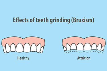 bruxism teeth grinding damage