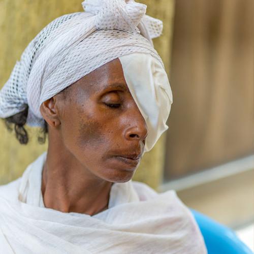 Eye care in Africa