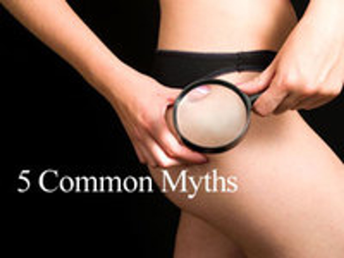 ​5 Myths About Cellulite!
