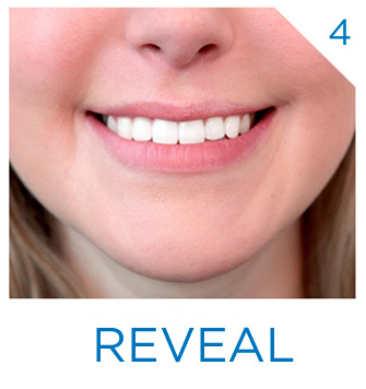 4 Steps to whiter teeth. Step 4 Reveal.