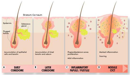 clogged pores and acne treatment