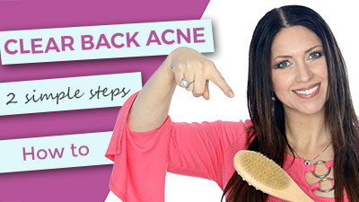 Clear Back Acne | 2 simple steps