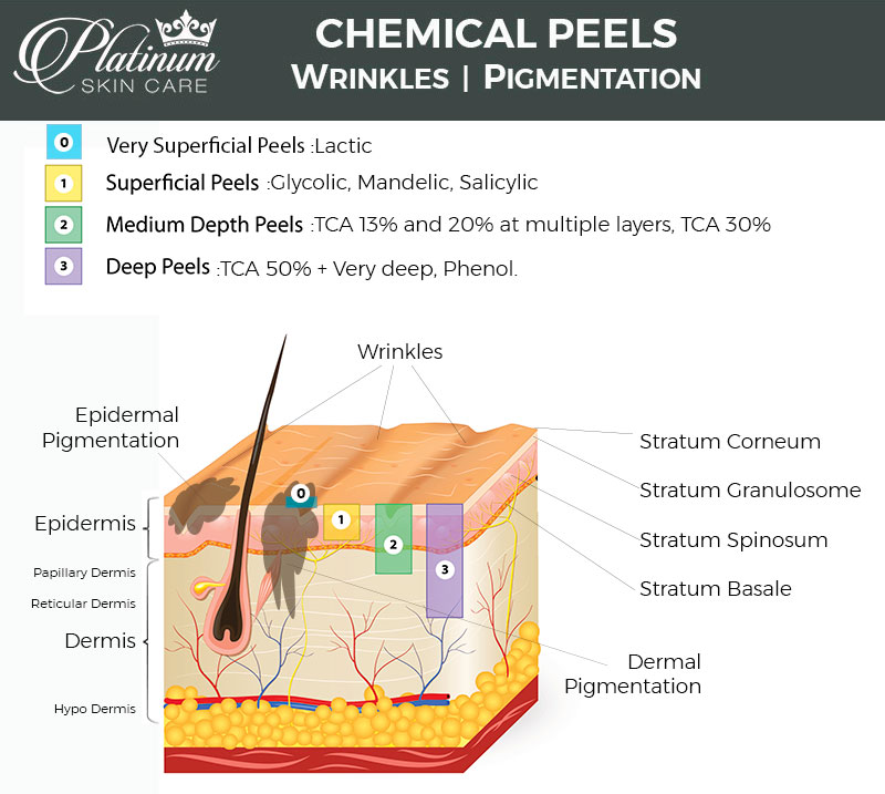 The TCA acid can penetrate quite far. It is considered a medium depth peel due to the fact that with multiple layers, it can reach down into the epidermis and even a bit into the upper Papillary dermis. This is beneficial for many skin issues such as pigmentation, fine lines and scarring, since they tend to run as deep. Regular hydroxy acids can not penetrate past the Stratum Corneum, so they are considered more of a Superficial peel, very superficial peel, or just an Exfoliation.
