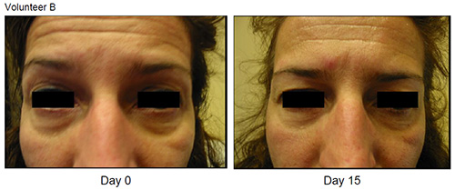 Eyeseryl Before and After Volunteer B