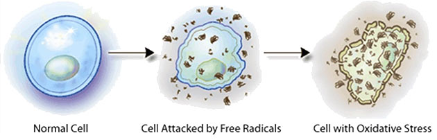 what does free radical damage look like? free radicals damage everything they contact. Antioxidants are the scavengers that fill in missing electrons to stop damage from occuring.