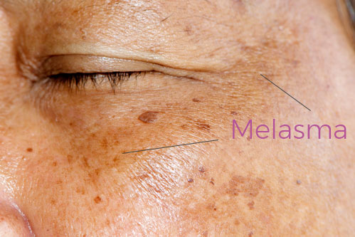 Melasma is commonly found on the forehead area. It can be treated by melanin inhibitors and chemical peels, but is still a chronic issue.