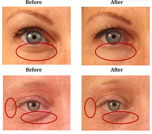 Revital Eyes Bags Before and After