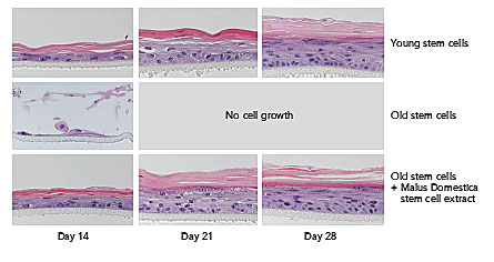 Skin stem cells young versus old