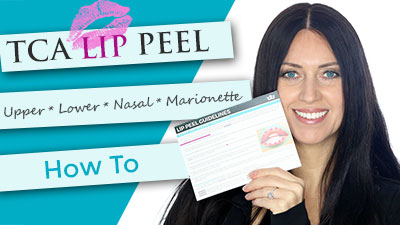 tca-lip-peel-nasal-labial-folds-marionette-lines-web.jpg