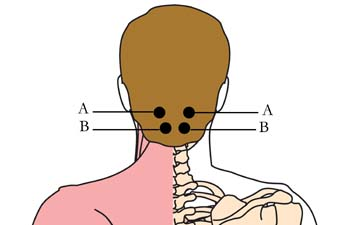 tachyon-product-os-15-headache-migrane-cell-points1.jpg