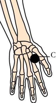 tachyon-products-os-15-headache-migrane-cell-points2.jpg