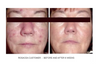 Before and After SBR Regimen at 6 weeks. 100% organic Ayurvedic Hydrator / Toner for Sensitive, Blemished and Rosacea Skin types.  Works synergystically with our SBR cleanser and Serum to help calm redness and irritation in a hurry.  Packed with anti-oxidants and free radical scavenger botanical extracts and essential oils, this hydrator is a miracle worker!