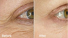 Before and after 6 weeks use of PuraVeda Vata regimen, including Aloe Eye serum!