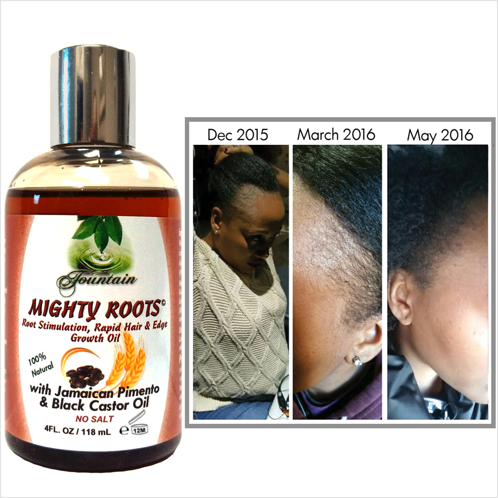 Introducing Fountain Mighty Roots Hair To Save Your Hair