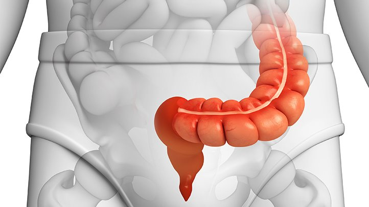 diverticulitis-what-is-the-sigmoid-colon-722x406.jpg