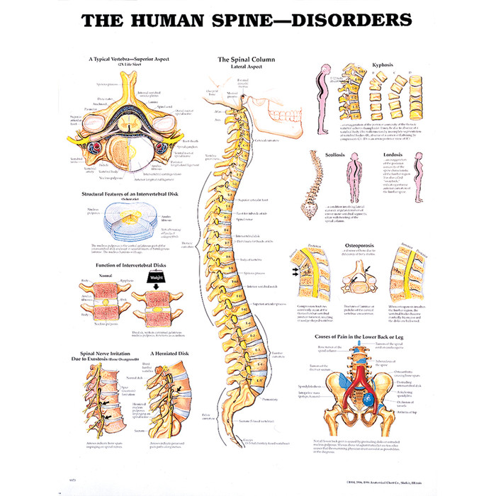 "HUMAN SPINE DISORDERS CHART 20"" W X 26"" H, LAMINATED"