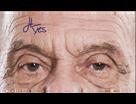 Viscot (STERILE) MINI Surgical Skin Marker with Fine/Regular Tip & Ruler