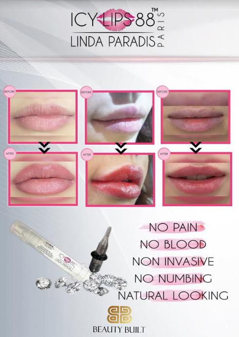 icy-lips-88.jpg