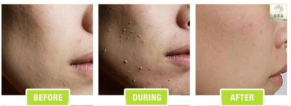 ORG Skincare organic mineral exfoliator and peel
