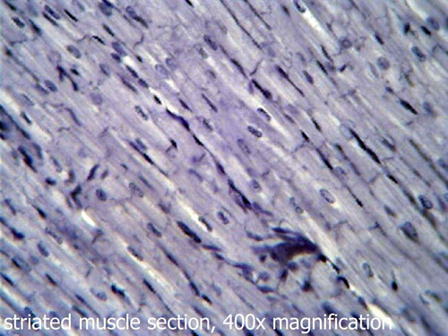 Muscle slide, 3 types, section