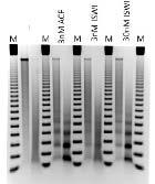 15-1013 Protein Gel Data