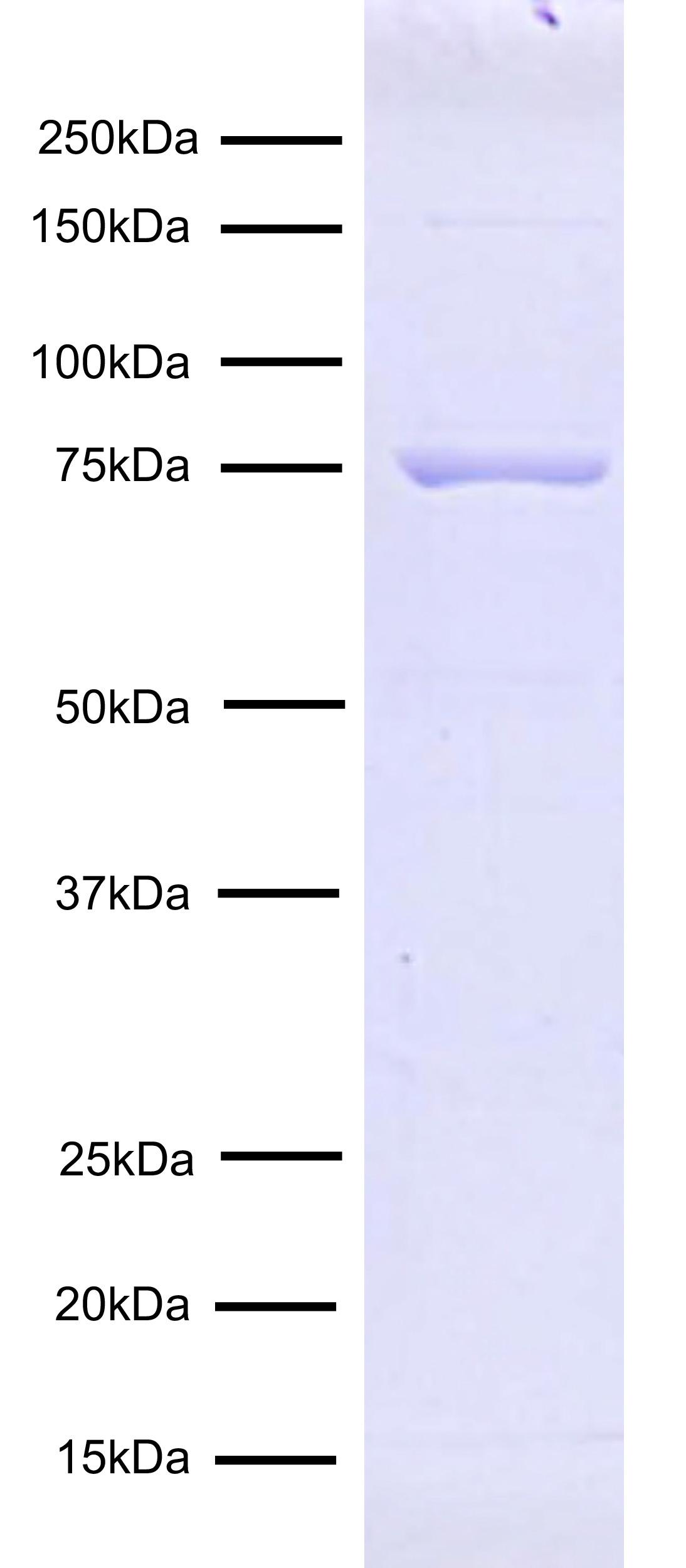 15-1117 Protein Gel Data