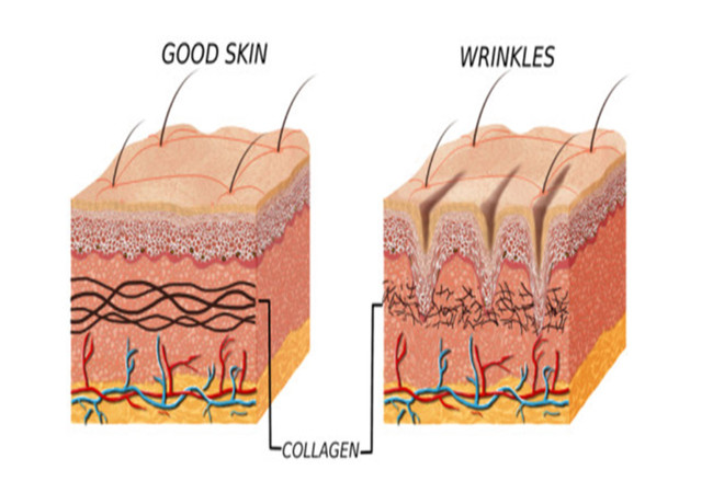 Collagen & its relation to fine lines & wrinkles